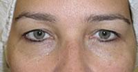 Oculoplástica-1