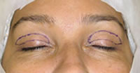 Oculoplástica-2