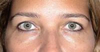 Oculoplástica-3